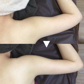 ブライダルエステ症例1